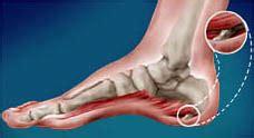 dolore ginocchio interno sotto rotula posteriore ginocchio gonfio