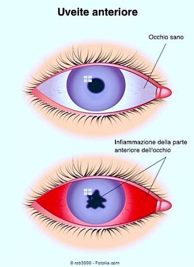 dolore interno occhio dolore all occhio e alla tempia alla fronte sinusite al