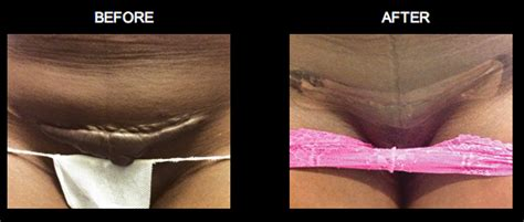 plastic surgery c section scar c section keloid scar removal yelp
