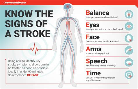 can a a stroke newyork presbyterian advances stroke treatment newyork presbyterian