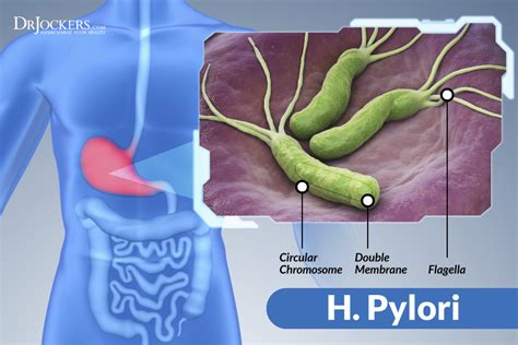 supplements h pylori the damaging effects of h pylori infections drjockers