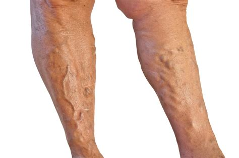 varicose veins pictures causes symptoms treatment