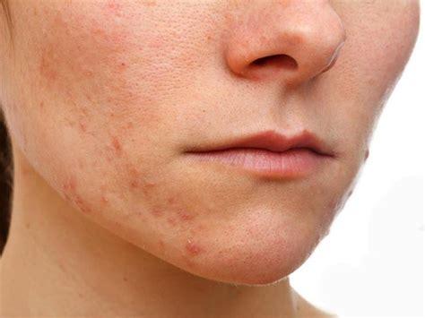 eczema best treatment treatment for eczema on 248 best eczema living