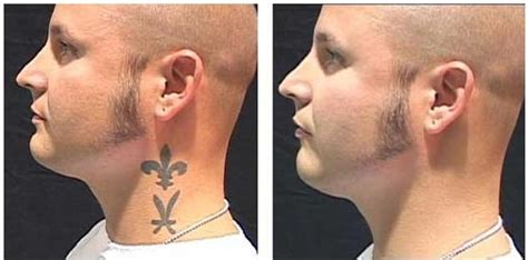 face tattoo removal before and after regret your we can remove or cover that