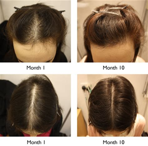 female pattern hair loss supplements i am now enjoying having a full head of hair