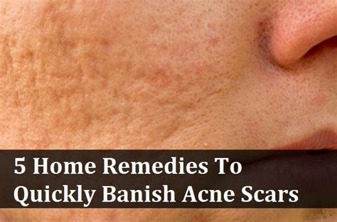 5 home remedies to quickly banish acne scars http www