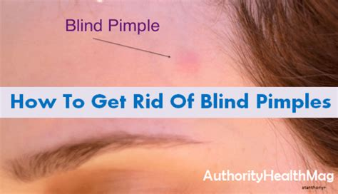 Blind Bumps how to get rid of blind pimples on chin and nose best