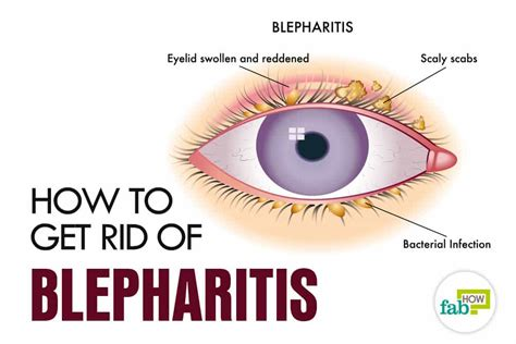 how to get rid of blepharitis with simple home remedies