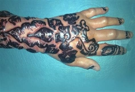 henna tattoo and eczema can scalp micropigment smp cause skin reaction or