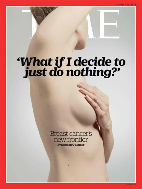 latest dcis breast cancer news and research dcis mystory breast cancer new horizon for ductal carcinoma in situ