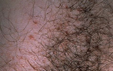 excess pubic hair excess pubic hair 7 things your body hair says about