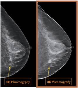 Mammogram hong kong 3d imaging mammogram 3d breast mammography 3d
