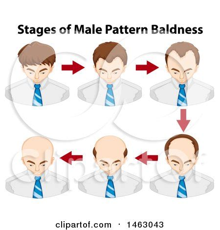 how male pattern baldness works royalty free rf hair loss clipart illustrations vector