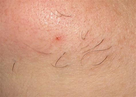 pictures of in grown hair in chin electrolysis case study follikill electrolysis toronto