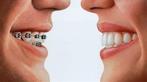 450 ab wann zahnspange kosten abh 228 ngig vom grad der zahnfehlstellung