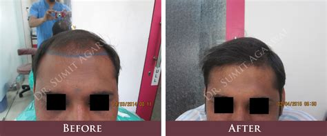 dhi hair transplant reviews dhi hair transplant cost in india hair transplantation in