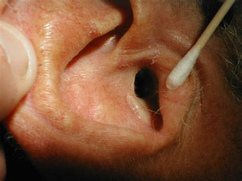 ear tumor ear infections as related to benign ear cyst or tumor pictures