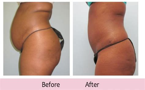 reduce belly after c section how to lose weight in your stomach after c section lovely