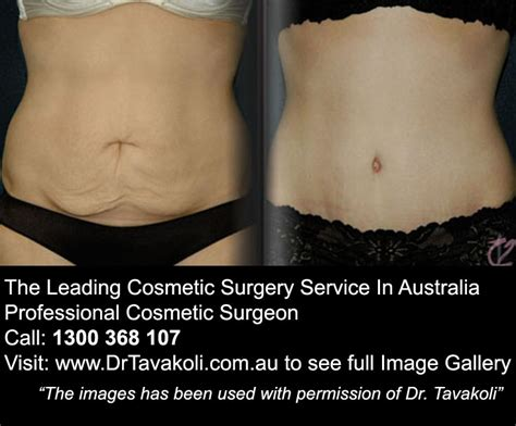 tummy tuck exercises post pregnancy the leading cosmetic surgery service in australia home