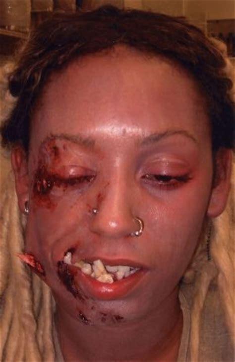 wired jaw surgery 42 best broken jaw images on andrei arlovski broken teeth and combat sport