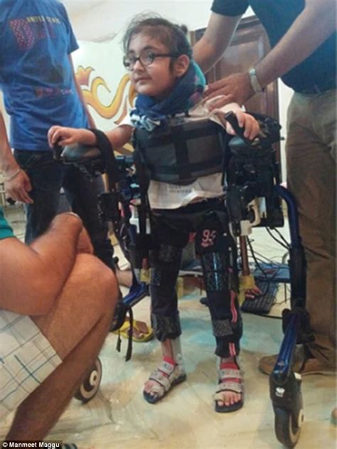 trexo robotics  exoskeletons   disabled kids walk daily mail