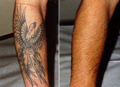 tattoo removal dc removal washington dc center for laser surgery