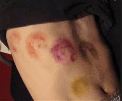 bruise colors stages of bruising colors pictures chart and different