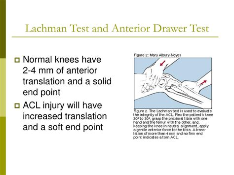 Lachman Drawer by Ppt Knee Injuries Powerpoint Presentation Id 360300