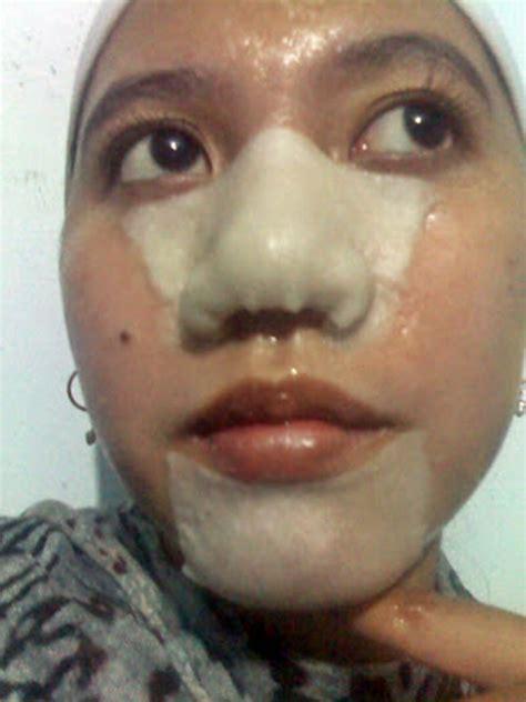 Masker Wardah Untuk Komedo tips menghilangkan komedo dengan cara alami dengan putih telur