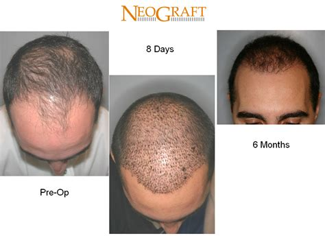 what is the cost of neografting the hair line neograft before after delaware skin wellness