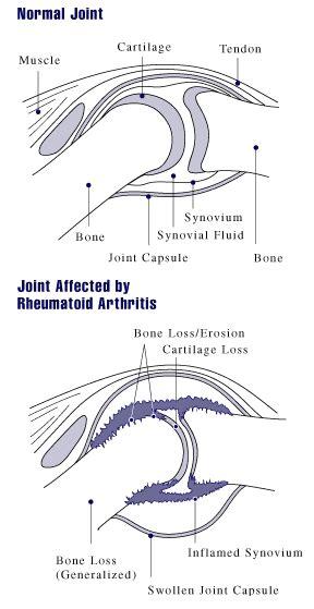 alimentazione per artrite reumatoide dieta per l artrite reumatoide innatia it