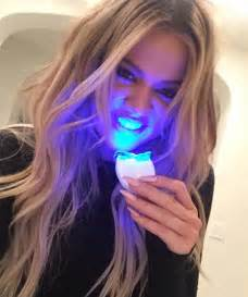 brightwhite smile teeth whitening light everything you need to about the endorsed