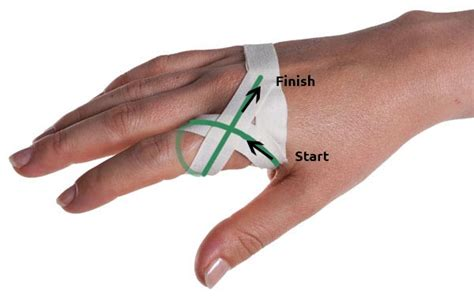 how to finger sprained knuckle taping physical sports first aid blog
