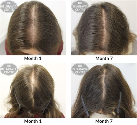 female pattern hair loss a clinical and pathophysiological review belgravia hair loss blog