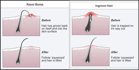 do you know how to reduce ingrown facial hair beauty the pink orchid beauty myths fact or fiction waxing