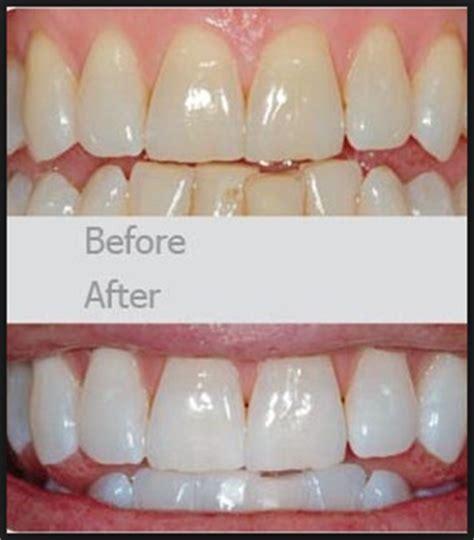 Obat Cara Memutihkan Mata Yang Kuning cara perawatan gigi agar tak putih dengan bahan alami