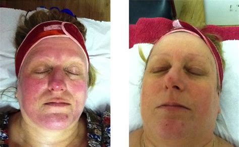 light therapy rosacea dermalux led light therapy manchester diane nivern clinic