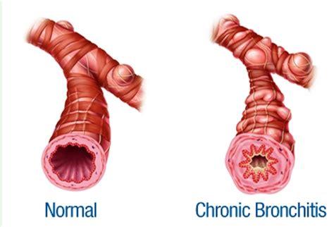 Obat Batuk Untuk Bronkitis Kronis terapi pengobatan untuk penderita bronkitis kronis sehat