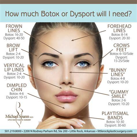 I Dont Use Botox by Why Don T I My Botox Dysport Results Ay Mag Ay