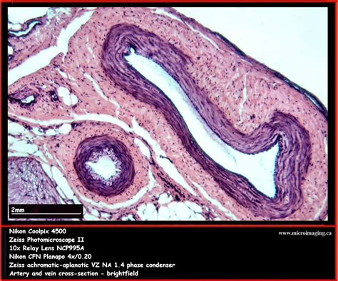 cross section of an artery artery vein cross section