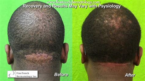 how to prevent hair bumps after haircut neck bumps acne keloidalis nuchae razor bumps back of