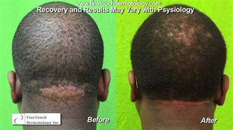 scalp ingrown hair bumps after haircut neck bumps acne keloidalis nuchae razor bumps back of