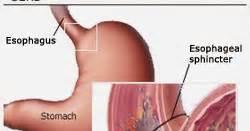 Obat Asam Lambung Alami Paling Uh cara menyembuhkan penyakit gerd cara menyembuhkan testis