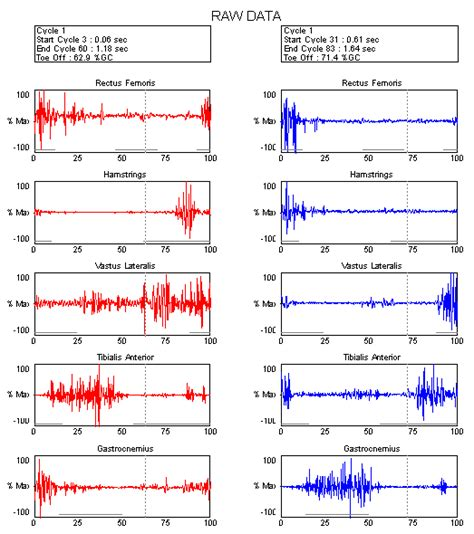 Emg Report Template Motion Lab Systems Software Emg Graphing