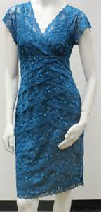 Galerry lace dress sleeve