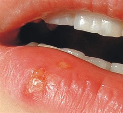 mouth or canker sores cold sores vs canker sores