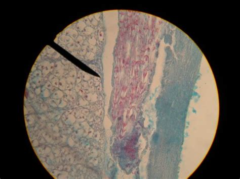 spinal cord cross section slide nervous tissue cylobacter jedi
