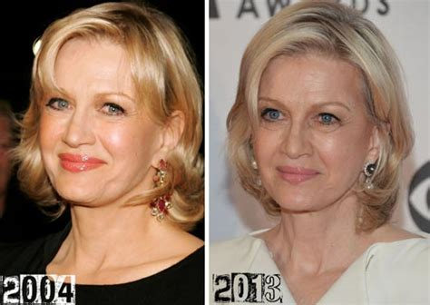 Celebrities Who Have Had A Neck Lift | diane sawyer plastic surgery or graceful ageing