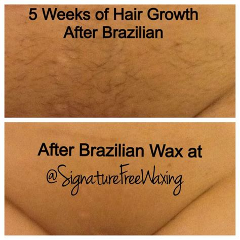 what is brazilian wax top photo this client has a condition called pcos which