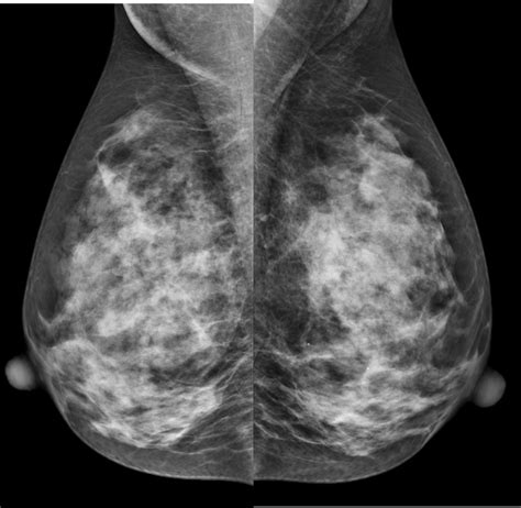 mammogram images abbreviated screening breat mri novant health imaging